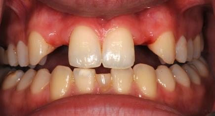 Ausgangssituation: ohne Zähne