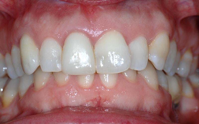 Ausgangssituation mit noch vorhandennem Zahn der Patientin