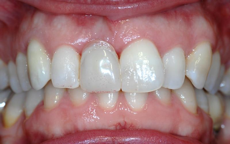 Lippenlachlinie mit eingesetztem Provisorium 2