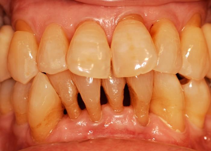 Frontalansicht der parodontal sanierten Zähne und der seitlichen Rekonstruktion