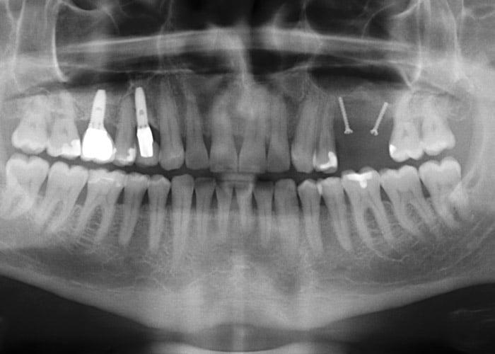 Röntgenkontrolle nach Vertikalaugmentation eines Beckenkammtransplantates mit Fixierung durch 2 Osteosyntheseschrauben
