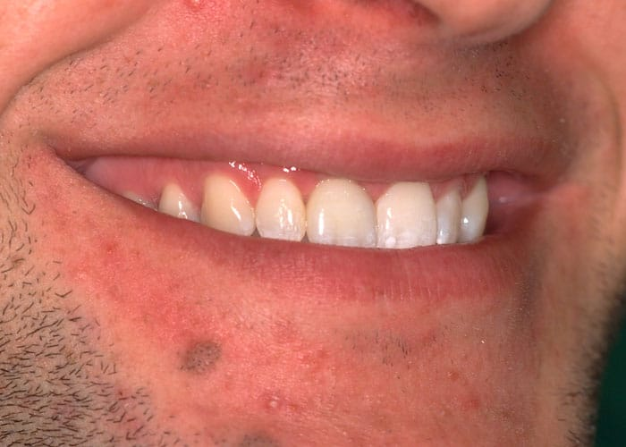 Lippenlachlinie mit roter Ästhetik