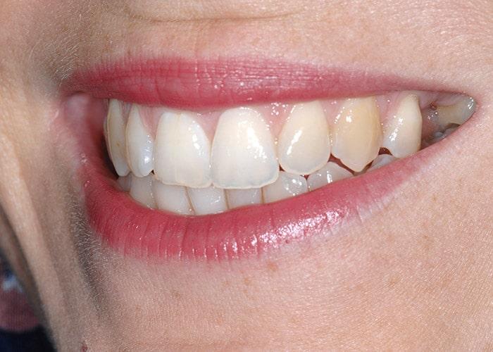 Lippenlachlinie mit störender Schaltlücke Zahn 25