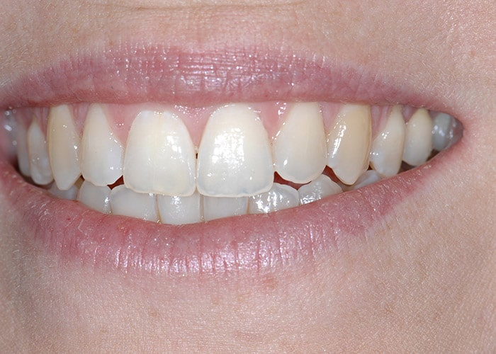 Lippenlachlinie nach prothetischer Versorgung