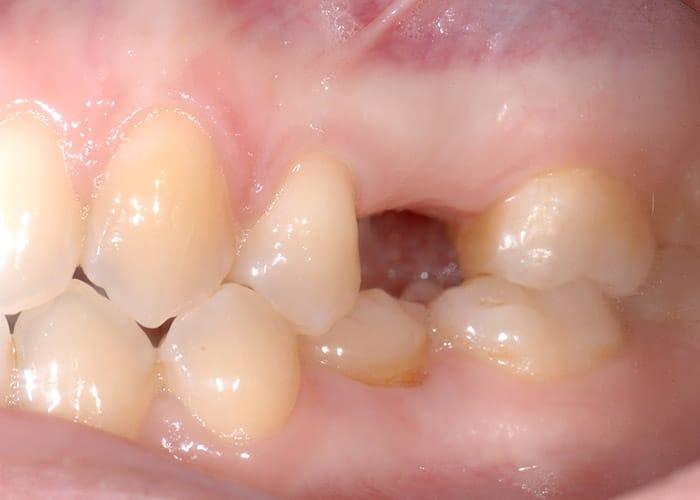 Schaltlücke Zahn 25