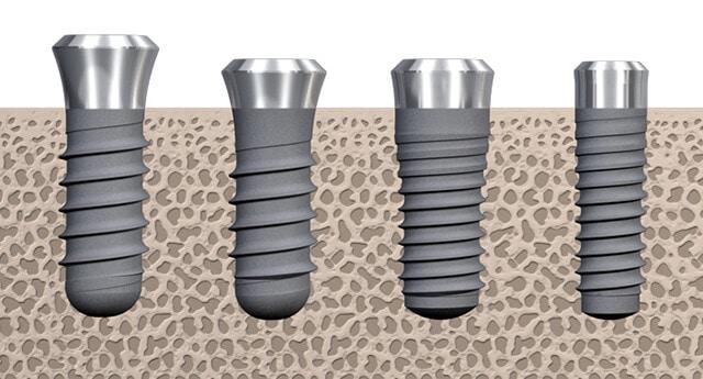 Титан против керамического имплантата