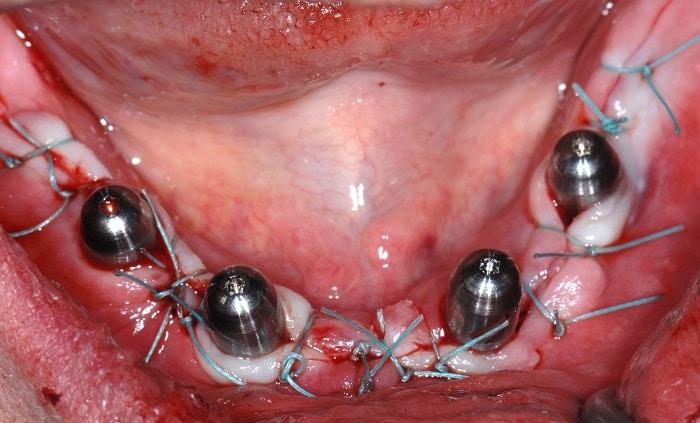 Klinische Situation nach Einsetzen der Implantate