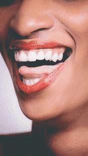 laecheln nach zahnkorrektur